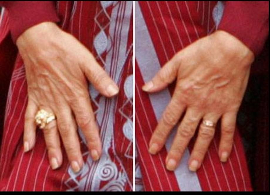 Mu hands
